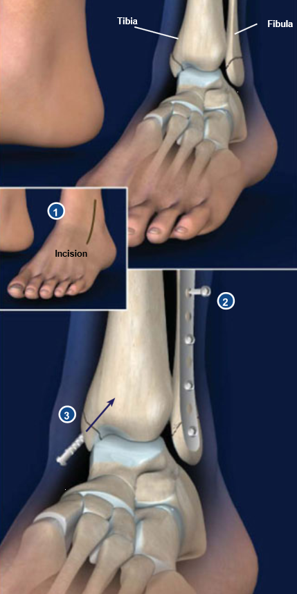 Ankle-Fracture-Surgery