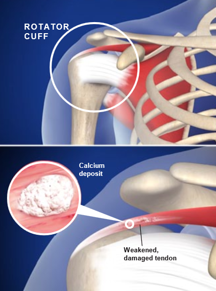 Calcific Tendinitis Of The Shoulder Central Coast