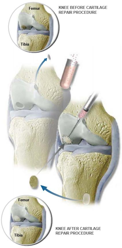 Cartilage-Repair