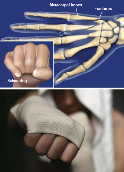 Fractures-Hand