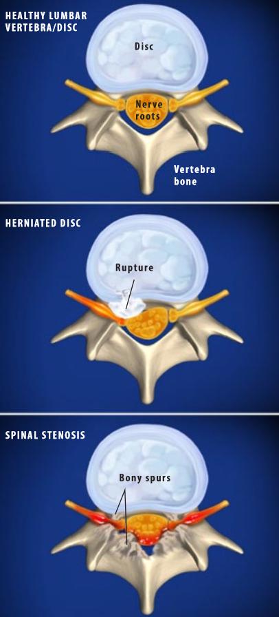 Lumbar-Radiculopatía
