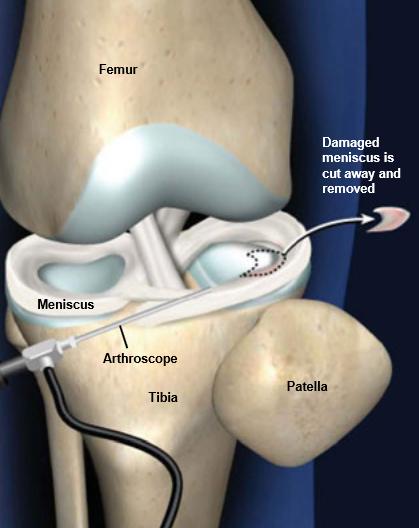 Partial-Meniscectomy