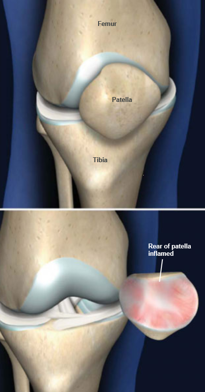 Patellofemoral Pain Syndrome Surgery