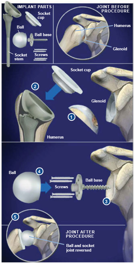 Reverse-Total-Shoulder-Replacement