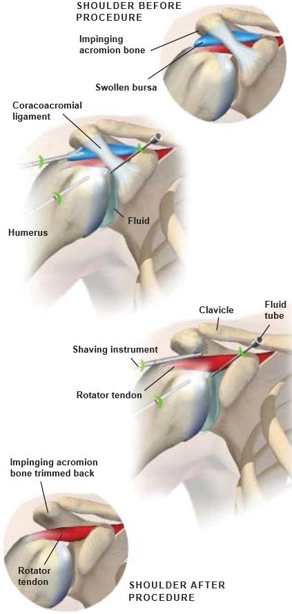 Hombro-Impingement-Cirugía