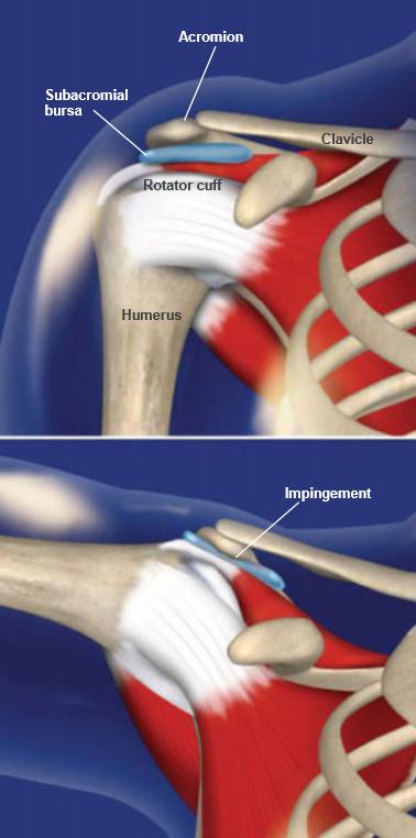 Shoulder-Impingement-Syndrome