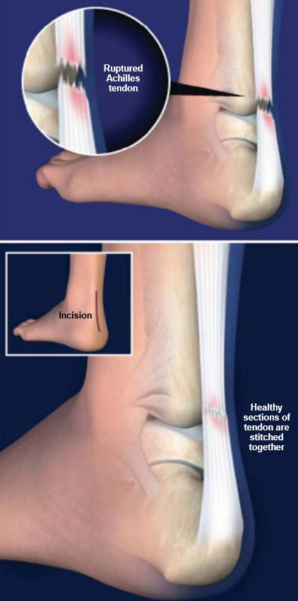 Surgery-Achilles-Tendon-Rupture
