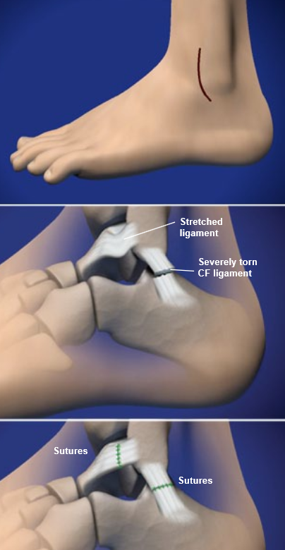 lateral-ankle-ligament-reconstruction
