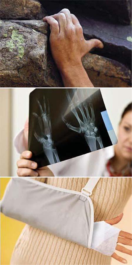 Sobre la cirugía de la mano