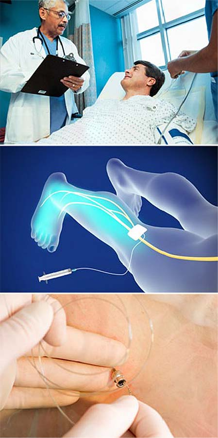 anesthesia-regional