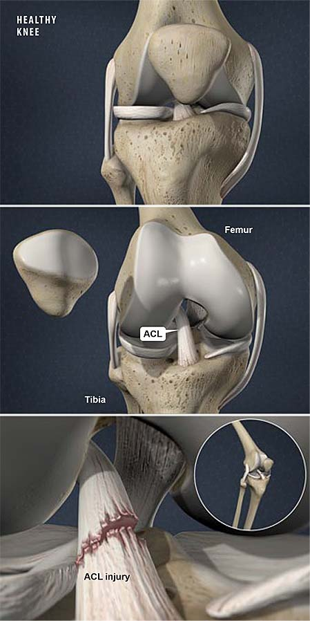 Anterior Cruciate Ligament Acl Injuries In Women Central Coast Orthopedic Medical Group