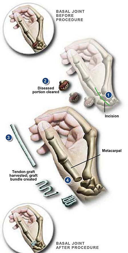 Cirugía de la articulación basal