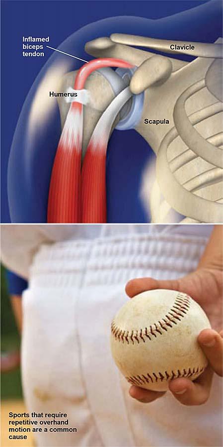 Bíceps-tendinitis