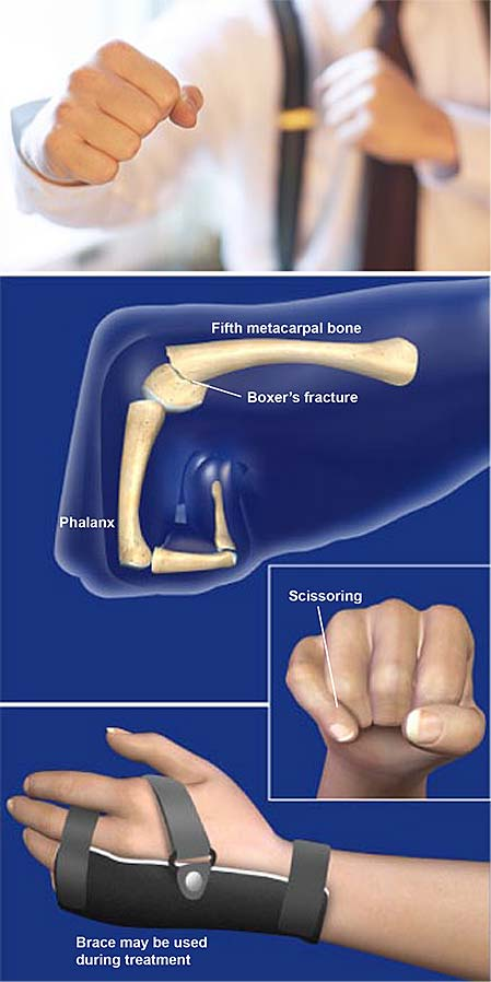 boxers-fracture