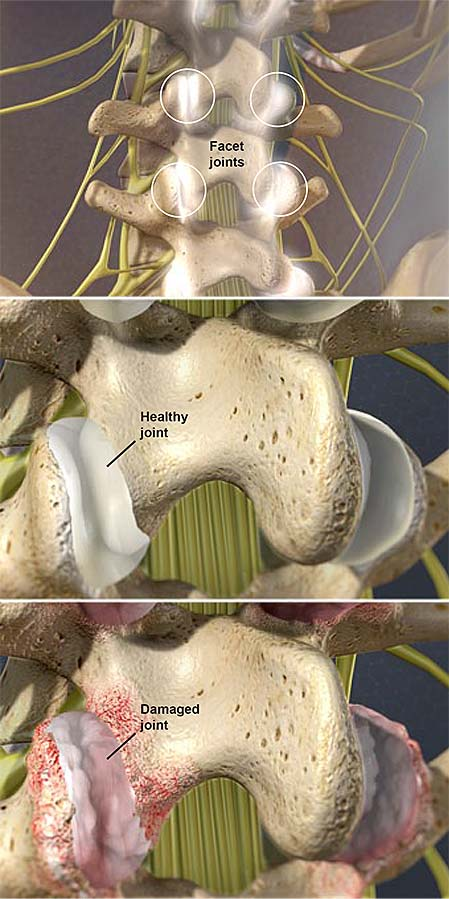 facet-joint-syndrome