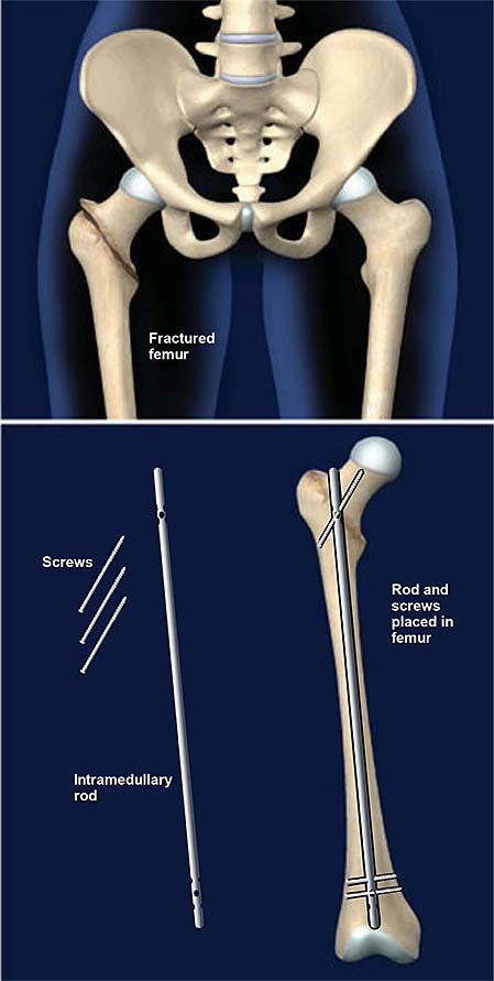 femur-fracture-fixation-with-intramedullary-rod