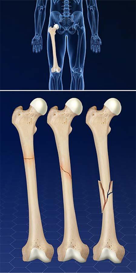 femur-fractures