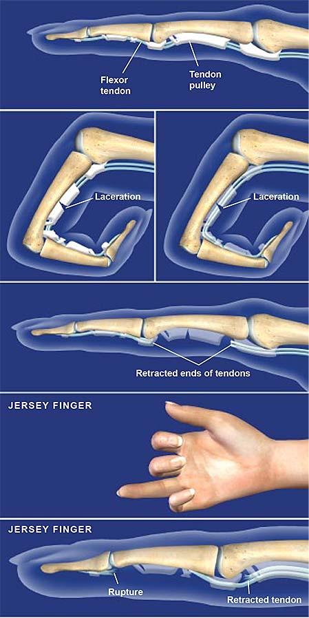 flexor-tendon-injuries