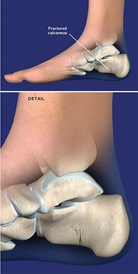 Fracture of the Heel Bone (Calcaneus)