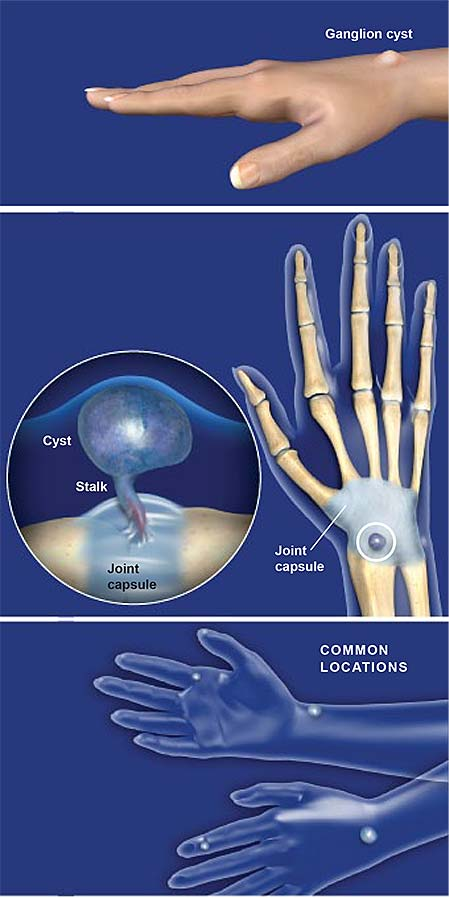 ganglion-cysts-of-the-hand
