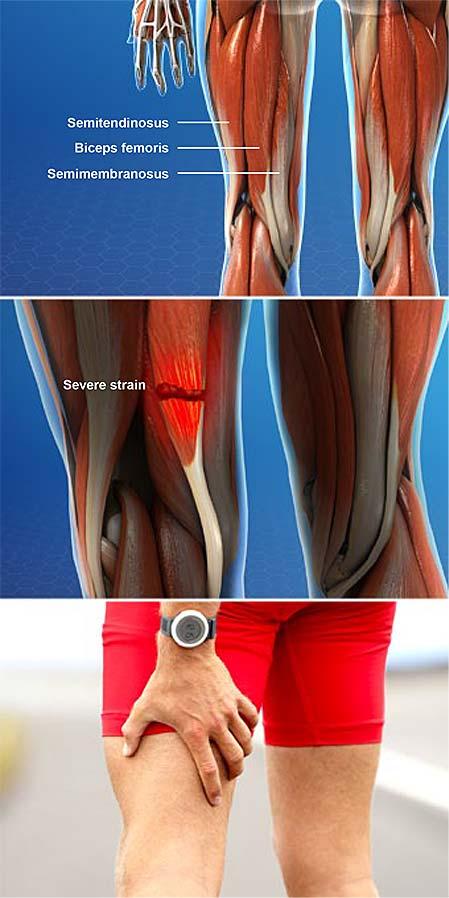 Lesiones musculares isquiotibiales