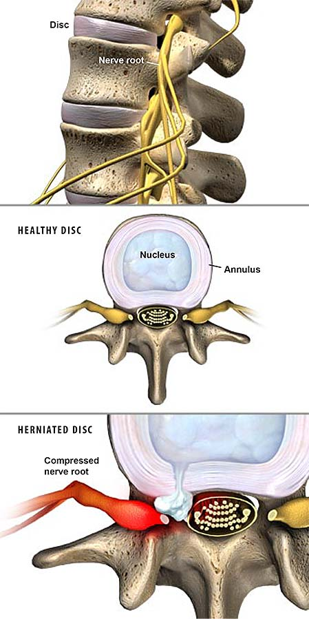 herniated-discs