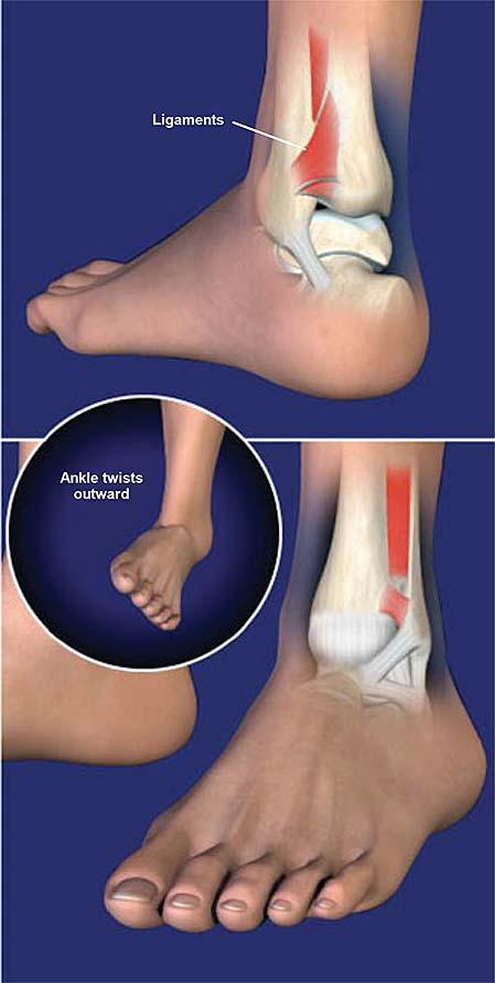 Lesión del ligamento del tobillo