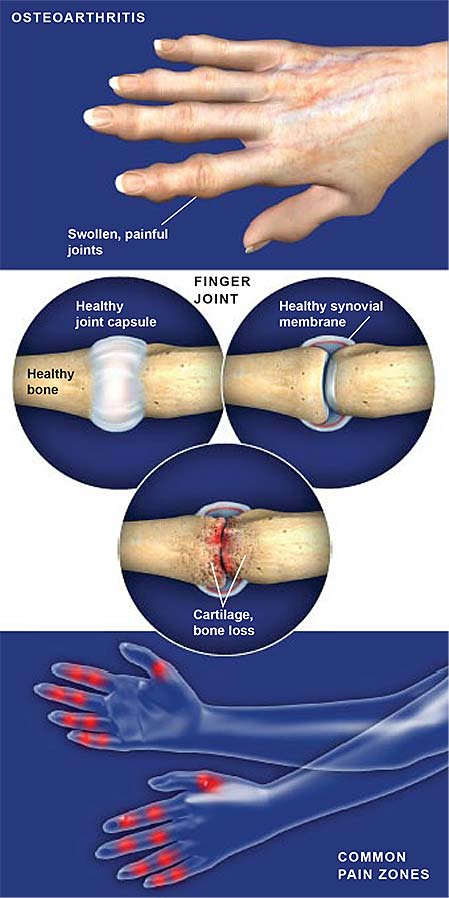 osteoarthritis-of-the-hand