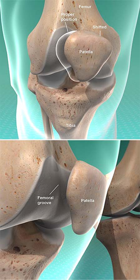 patellar-tracking-disorder