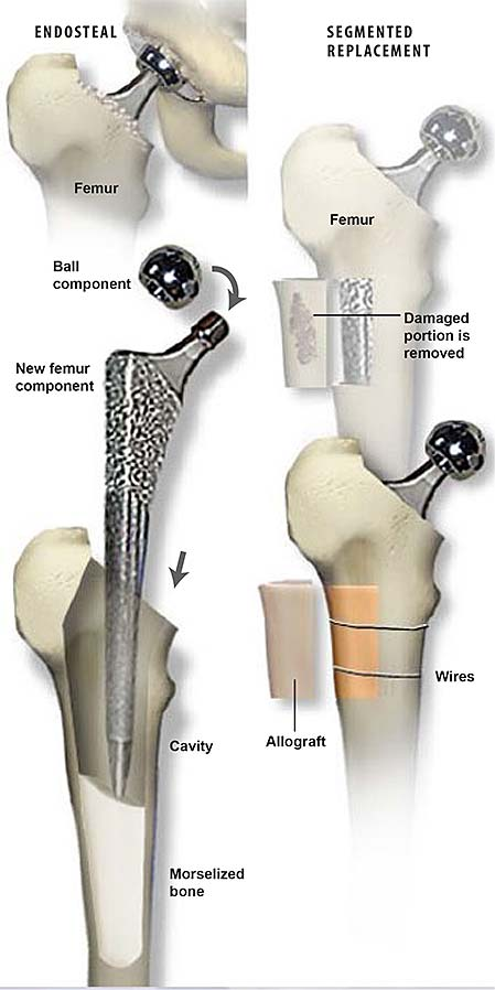 revision-hip-with-allograft-1