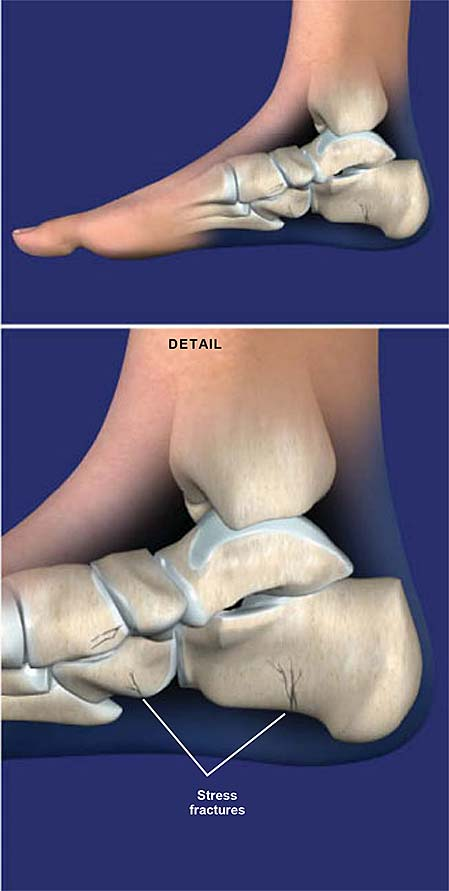 stress-fractures-of-the-foot-and-ankle