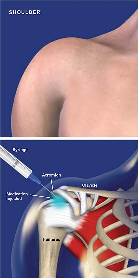 subacromial-injection