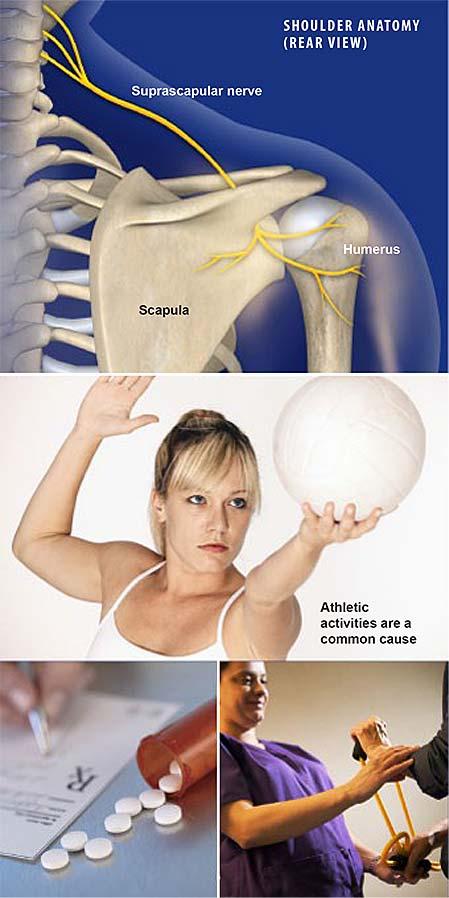 suprascapular-neuropathy