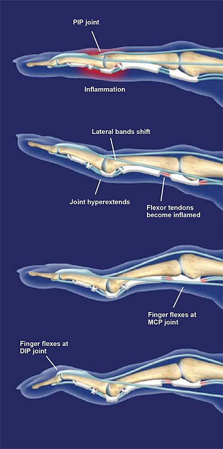 Cisne-cuello-deformidad-2