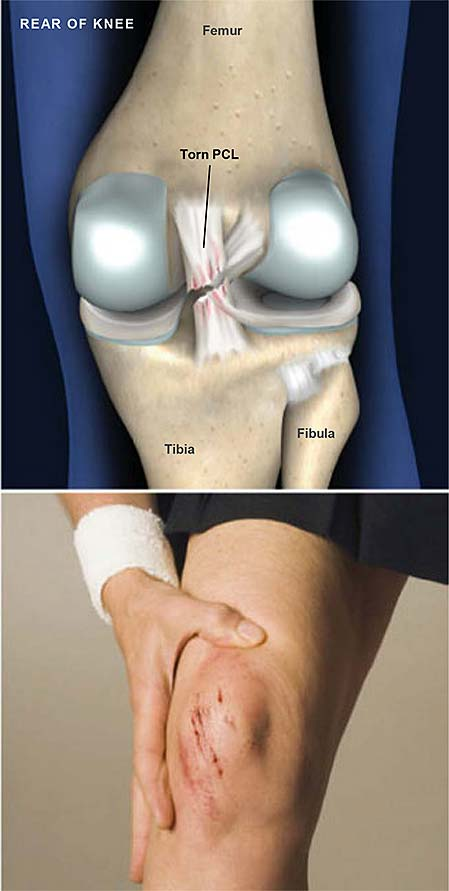 torn-posterior-cruciate-ligament-pcl