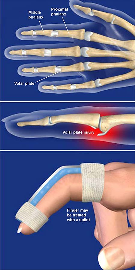 volar-plate-injuries