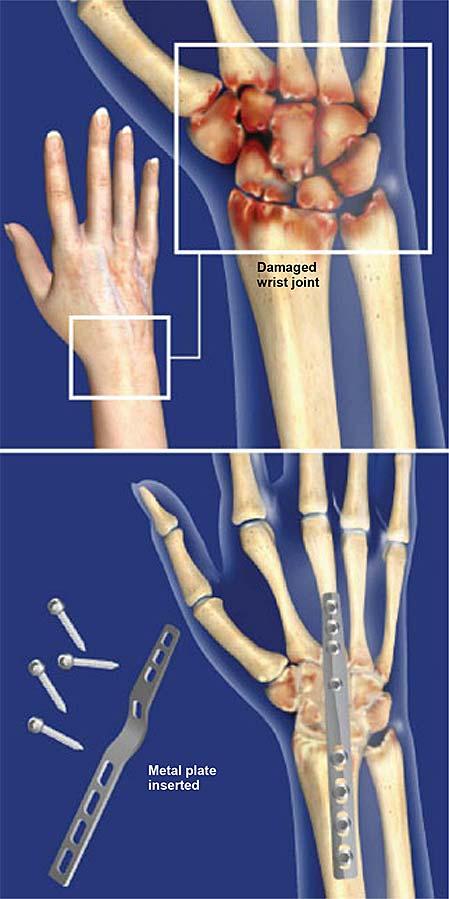 wrist-fusion-total-wrist-arthrodesis