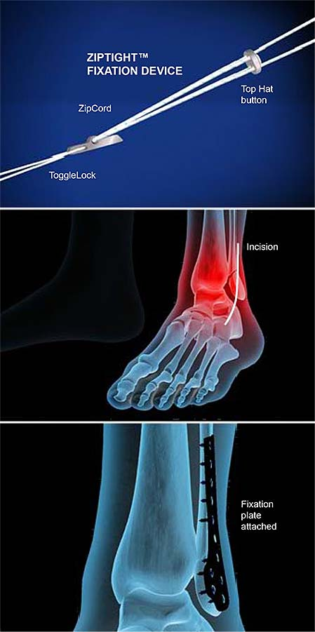ziptight-fixation-for-ankle-syndesmosis-1