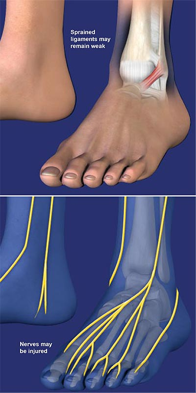 Chronic-Lateral-Ankle-Pain