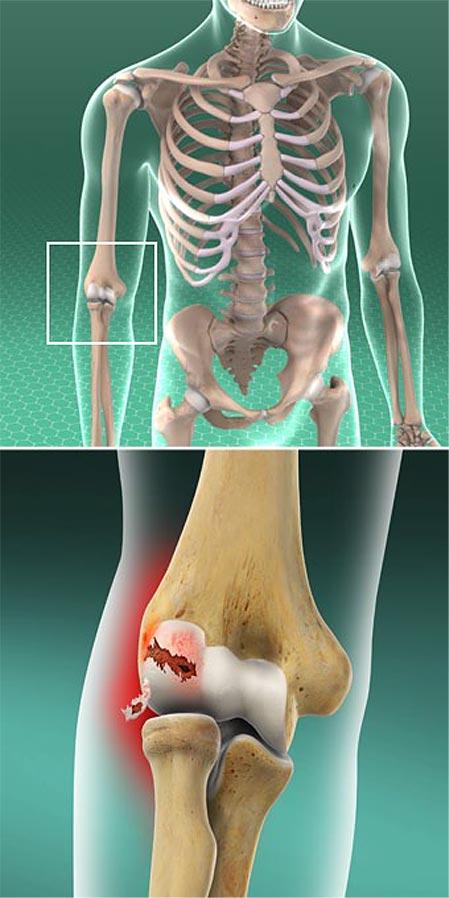 Osteocondritis Dissecans del Codo
