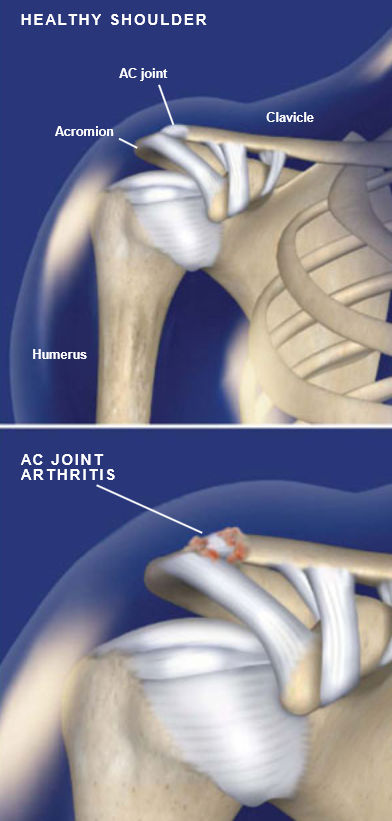 Acromioclavicular Ac Joint Arthritis Central Coast Orthopedic