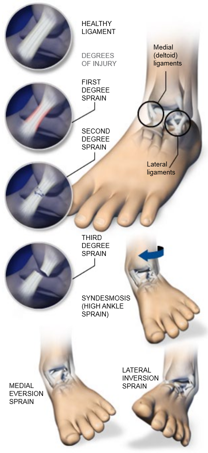 Ankle-Sprains