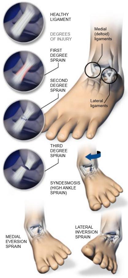 Ankle Sprains Central Coast Orthopedic Medical Group