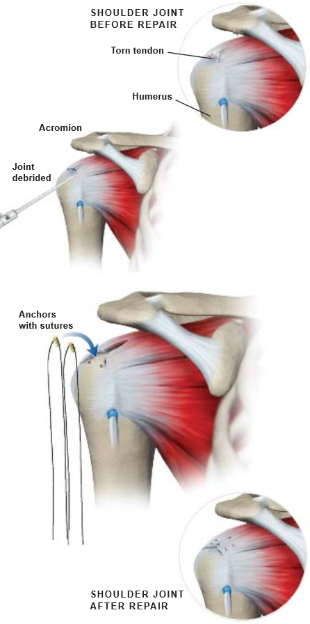 Arthroscopic Rotator Cuff Repair | Central Coast Orthopedic Medical ...