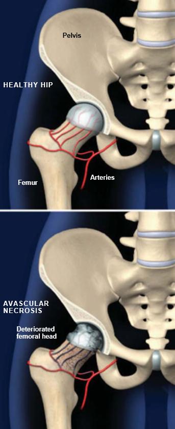 Avascular-Necrosis-Hip