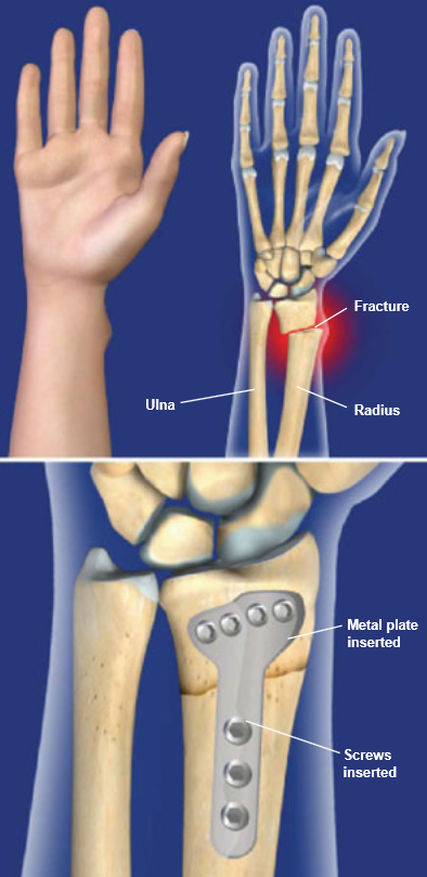 Distal Radius Fracture Repair with Volar Plate | Central Coast ...
