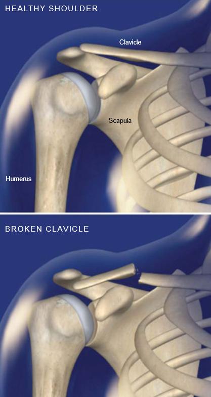 Fractura-Collarbone