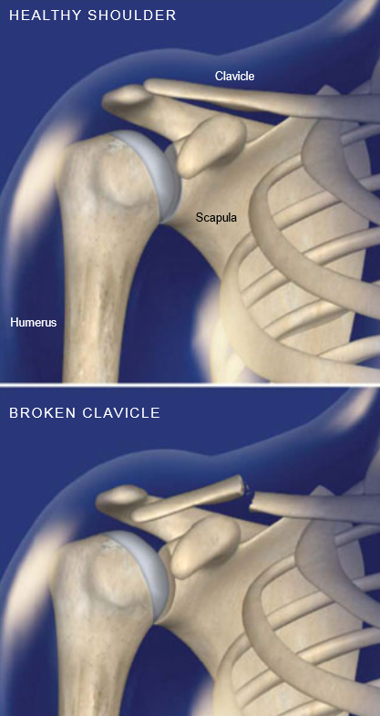 Fracture-Collarbone