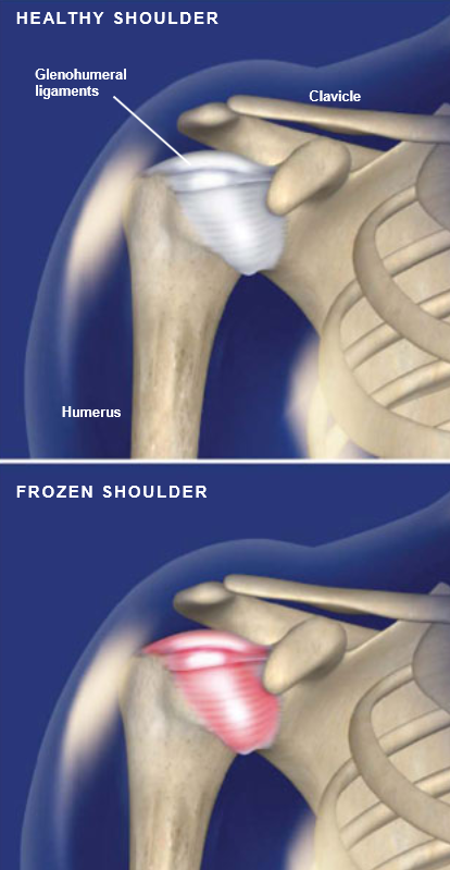 Frozen-Shoulder