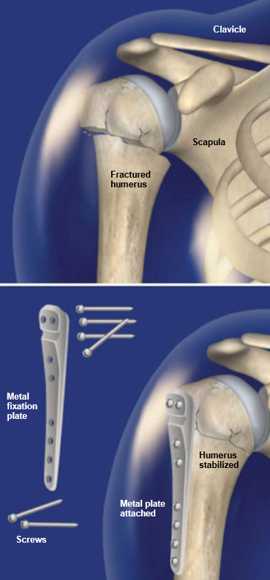 Orif Surgery For Proximal Humerus Fracture Central Coast